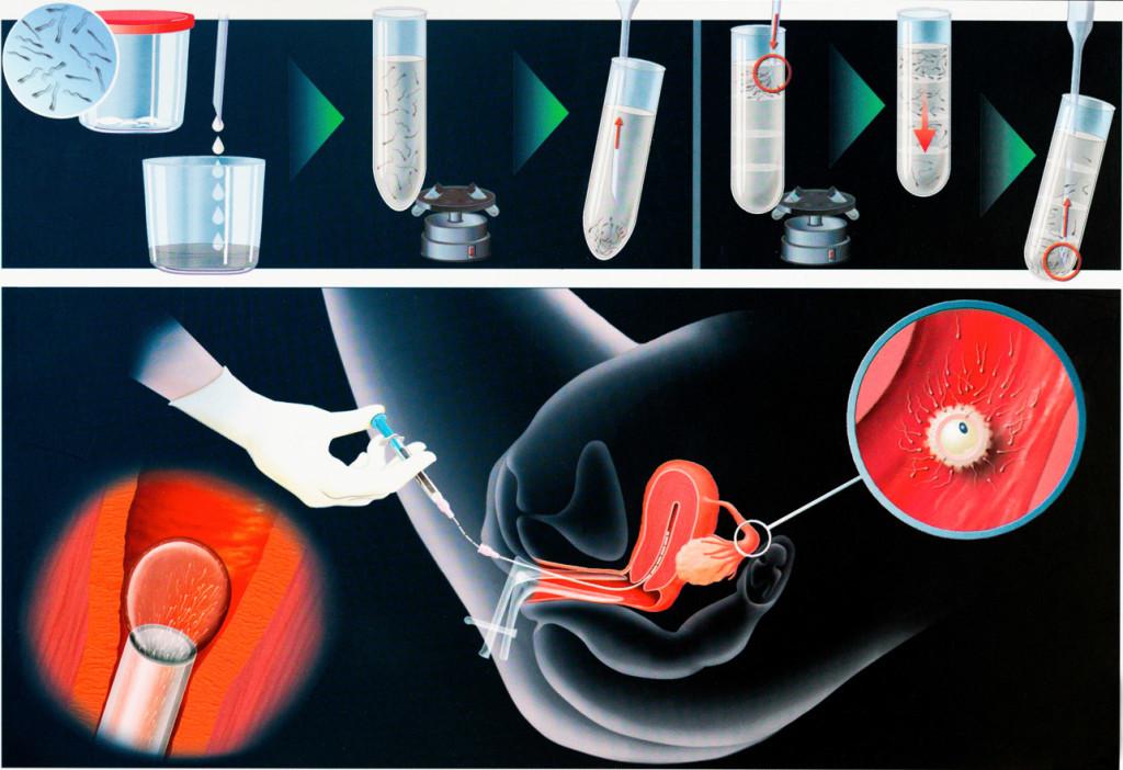 Искусственная инсеминация спермой мужа