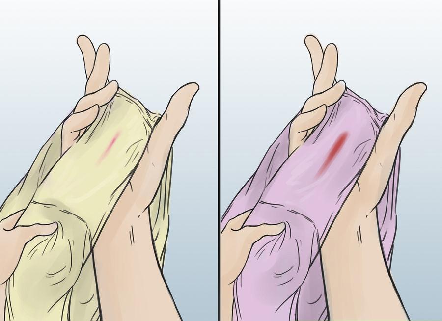 Имплантационное кровотечение: как выглядит, симптомы и причины