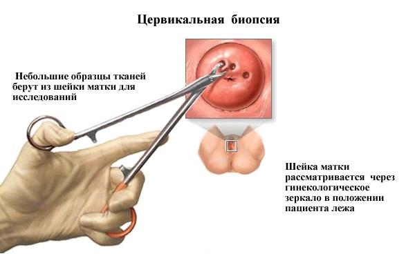 Биопсия шейки матки: что это такое, цель процедуры, как проводится