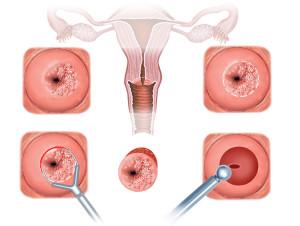 Биопсия шейки матки: показания, противопоказания, типы процедуры